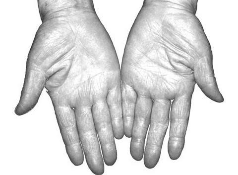 从掌纹诊断心血管病