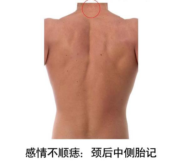 颈后中侧若生有胎记